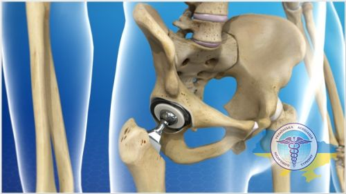 Joint replacement in Austria