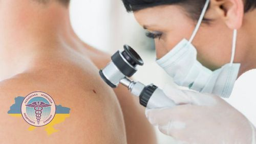 Diagnosis of melanoma in Germany