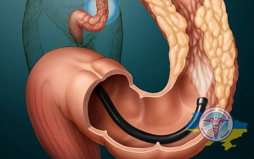 Treatment of the large intestine in Germany