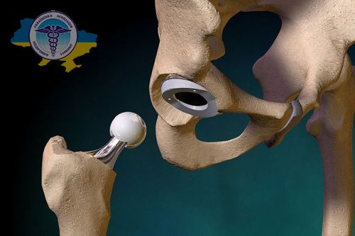 Hip replacement in Poland