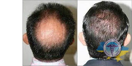 Hair transplant - photo before and after