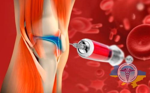 PRP therapy in orthopedics